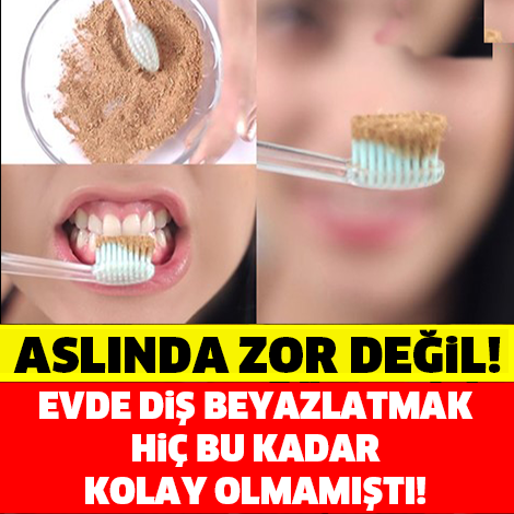 Aslında evde diş beyazlatmak bu kadar kolay! İşte en kolay ve en etkili yöntem...